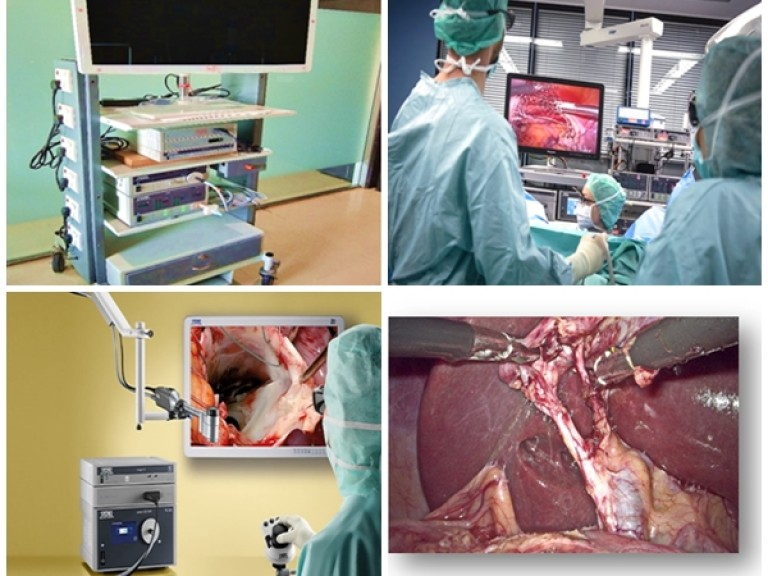 3D Laparoscopic Surgeries